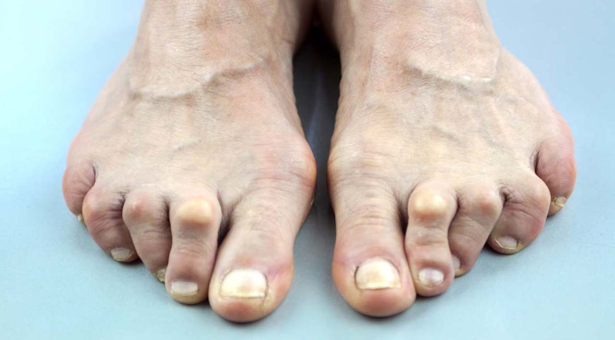 Bunion  Definition of Bunion by MerriamWebster