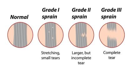 grade of sprain 2